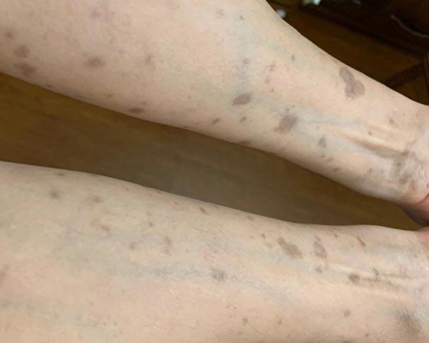 Piros foltok vagy pontok a lábakon
